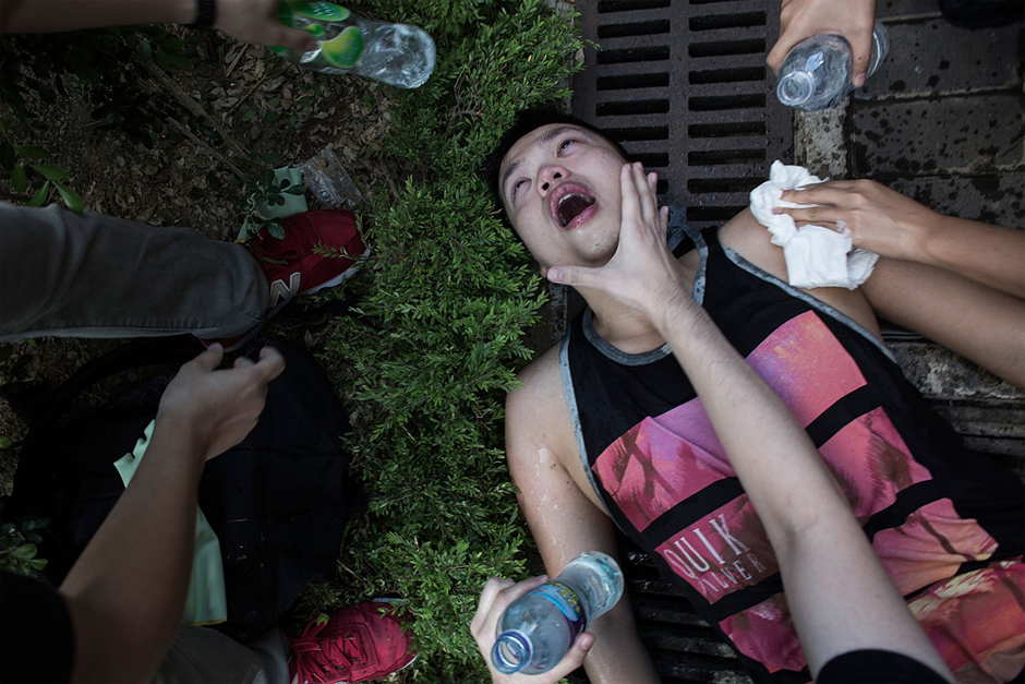 An injured protester is tended to after clashing with riot police. (Photo by Lam Yik Fei/Getty Images)